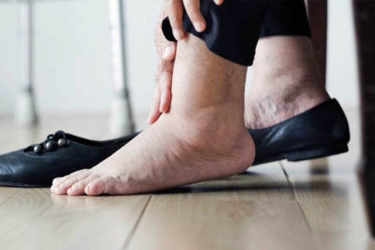 Këmbë të fryra nga vapa, mënyrat më të mira si t'i shmangni