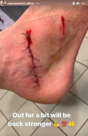 """Dëmtim """"horror"""", mesfushori shqiptar publikon pamjet e këmbës së tij"""